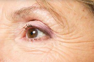 carattia cream for wrinkles